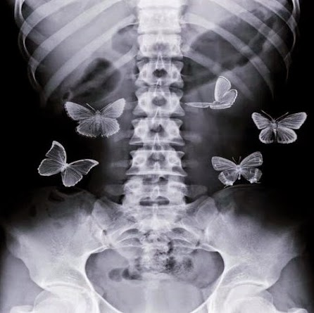 radiografía mariposas en el estómago